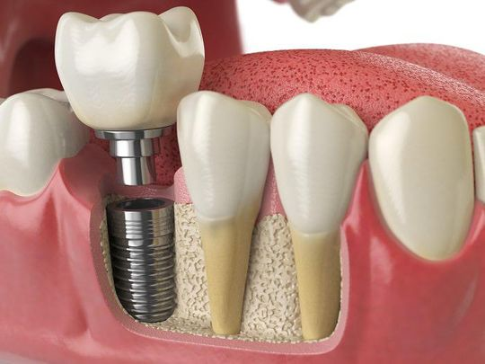 Clínica Dental Mar Dent Implantología